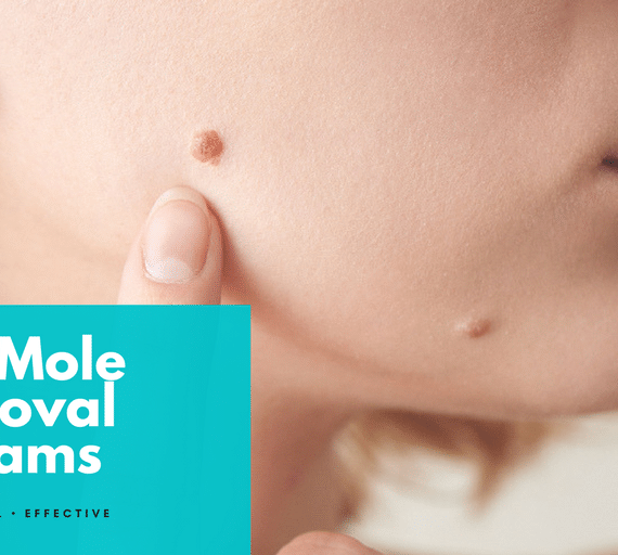 Top (11) Mole Removal Creams Of 2021 Reviewed With All Honesty