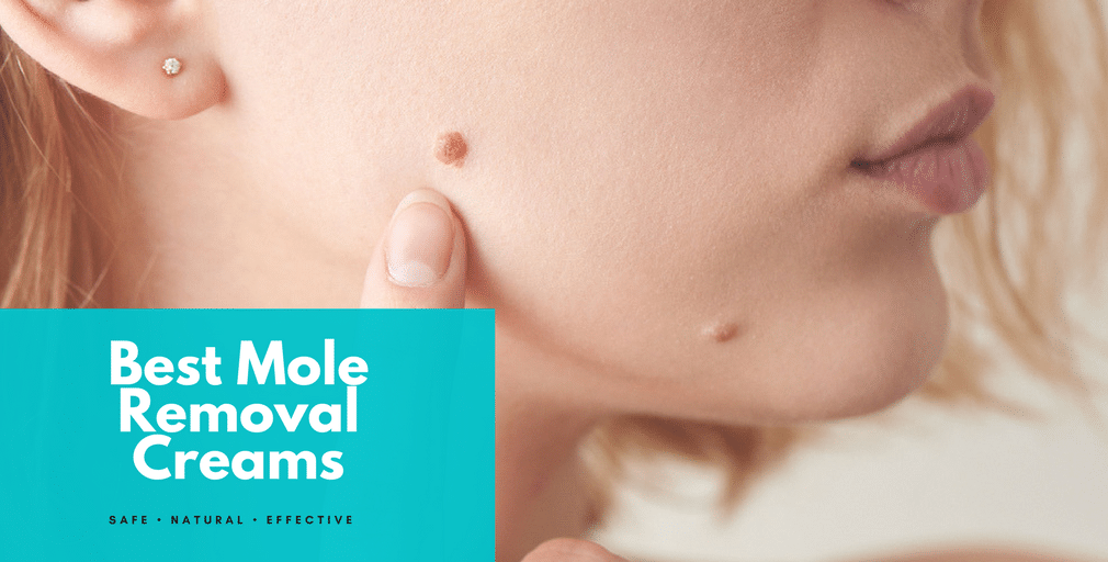 Best Mole Removal Cream