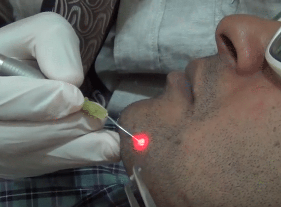 Laser Mole Removal Treatment & Cost: A Complete Guide!