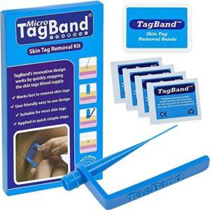 micro tagband skin tag remover
