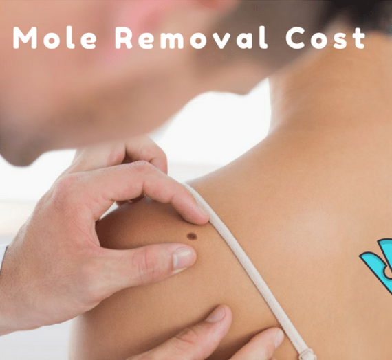 Mole Removal Cost Of Each Treatment Technique: A Complete Guide!